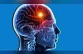 حمض الفوليك يقلل من خطر السكتة الدماغية