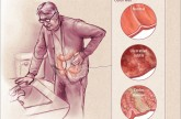 Incidence of Inflammatory Bowel Disease on the Rise