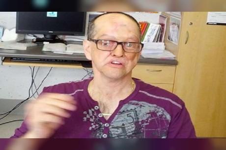 كندي ينتصر على السرطان ويفقد نصف وجهه