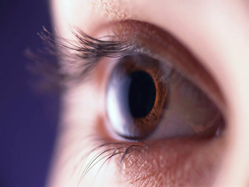 Better classification of dry eye disease will aid diagnosis, Tx - Dotemirates
