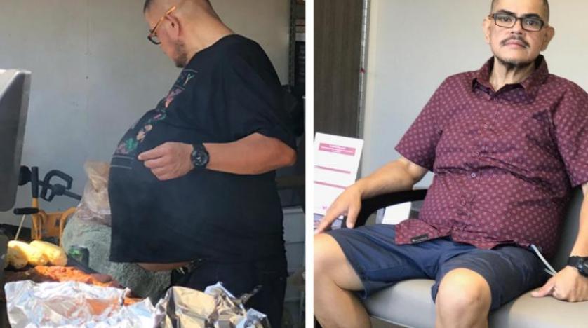 ظن أنه سمين فتفاجأ بإصابته بورم يزن 34 كيلوغراماً - دوت امارات